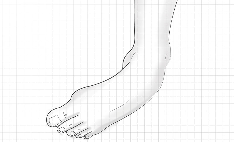 Drop Foot Clinical Problem Overview