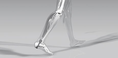 Drop Foot Functional Electrical Stimulation